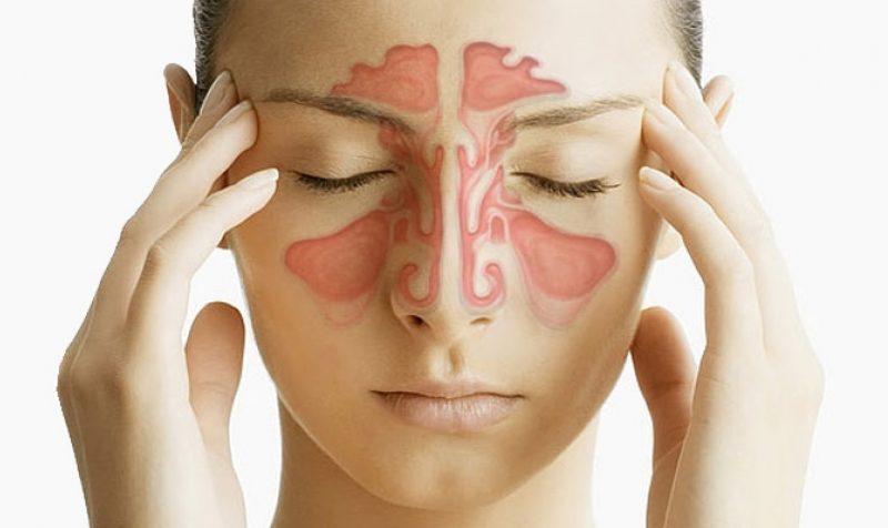 Sinusiti – shkaqet, simptomat, diagnoza dhe trajtimi