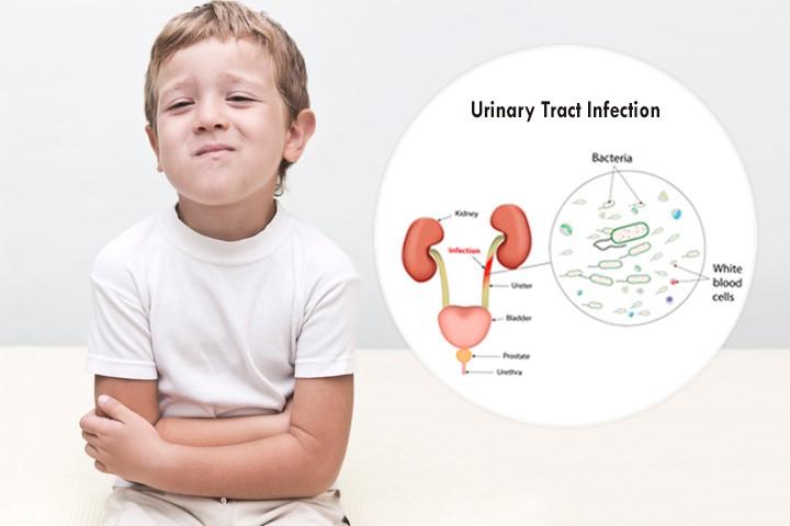 Infeksionet urinare tek fëmijët