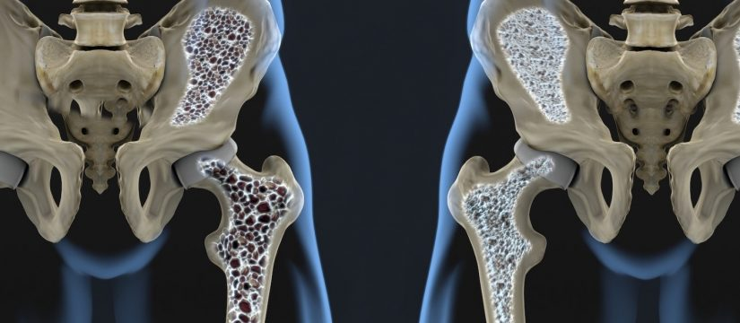 "Osteoporoza – ""vjedhës i heshtur"" i indit kockor"