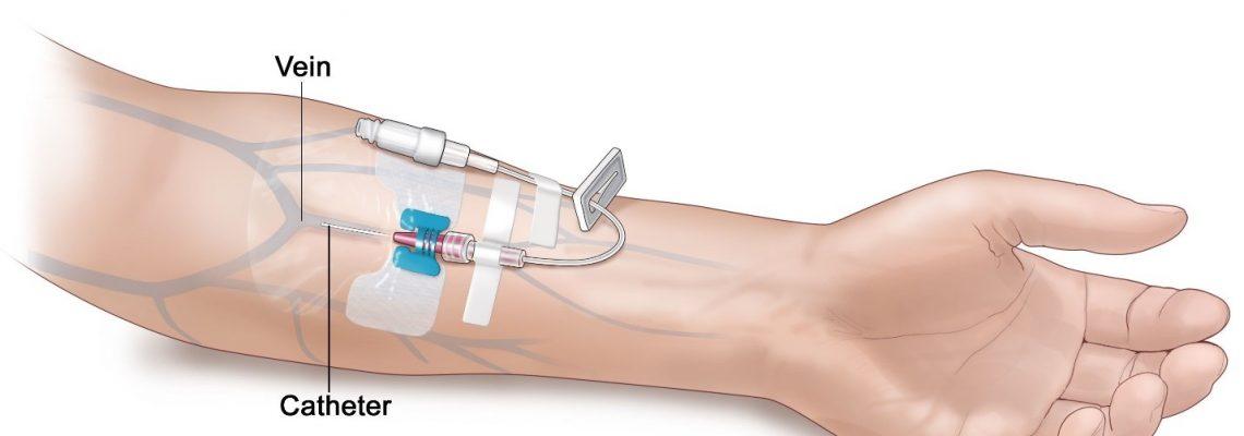 Dhënia e infuzioneve dhe injeksioneve